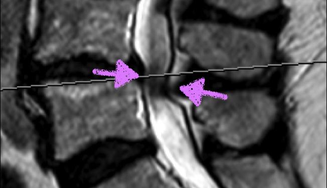 Estenosis de canal lumbar