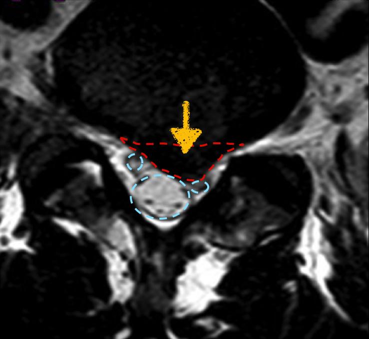 Imagen de resonancia magnética de una hernia L5-S1 izquierda. La flecha y el contorno rojo marcan la hernia. En azul se marcan las raíces nerviosas, que en el lado izquierdo están bastante comprimidas.