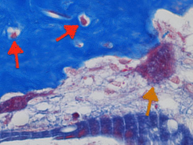 Imagen histológica con tinción de Tricrómico de Mason en la que se observa un corte de tejido óseo en formación y remodelación, con osteocitos marcados por flecha roja (células formadoras de hueso) y osteoclasto por flecha naranja (célula destructora de hueso).  Fuente de la imágen: Tesis Doctoral del Dr. Alberto Hernández.