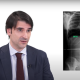 Informacion Escoliosis Blog Doctor Alberto Hernandez